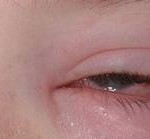 severe allergic conjunctivitis symptoms picture