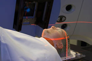 radiation treatments for tongue cancer