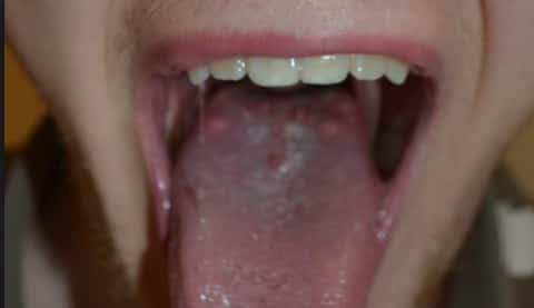 Girl has big bumps on the back of her tongue