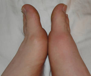 Gout usually becomes symptomatic suddenly without warning