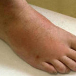 Arthritis patients are prone to develop plantar fasciitis
