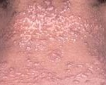 sarcoidosis skin: how does it looks like