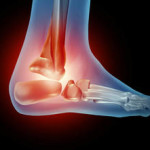 shooting pain in foot and heel