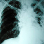 latent tuberculosis treatment options