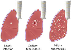 tuberculosis definition and causes