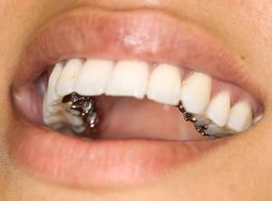 cost of invisible braces