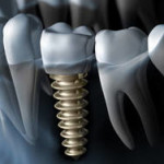 costs for dental implant abutment and crown