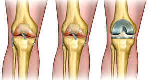 knee cartilage replacement surgery recovery