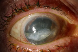 corneal ulcer definition