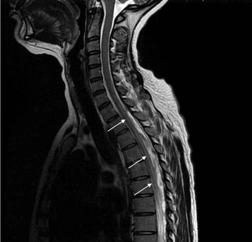 what does mri show in neck and spine?