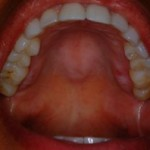 roof of mouth swollen on one side
