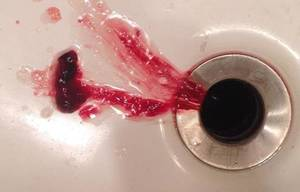 blood in sputum in morning when clearing throat