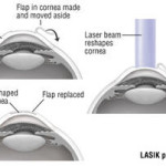 lasik eye surgery price 2016