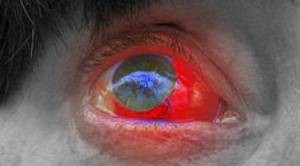 are burst blood vessels in the eye serious