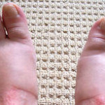 antibiotic side effects swollen feet