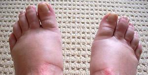 antibiotic side effects swollen feet