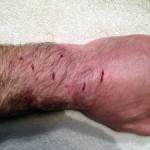 Dog Bite Infection Signs