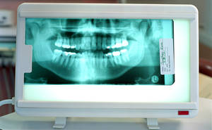 dental x-rays and early pregnancy
