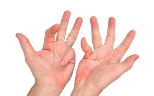 dupuytren's contracture images