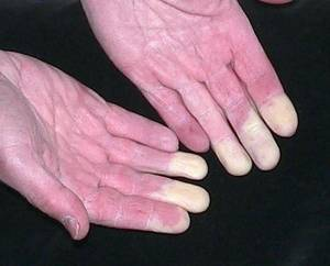 primary vs. secondary Raynaud