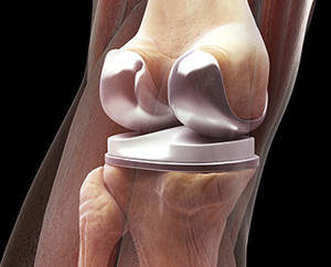 discomfort after knee replacement