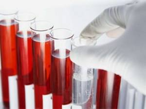 blood clots in urine in males