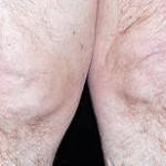 Osteoarthritis is a degenerative disease