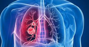 Lung Cancer Treatment