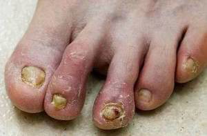 fungal infection on toenail