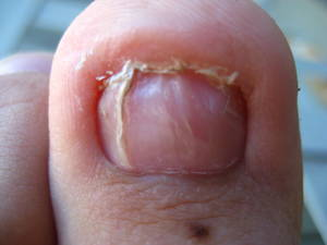 i broke my toenail will it grow back