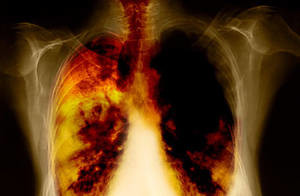 lung cancer prognosis by stages