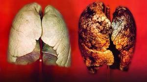 lung cancer symptoms image