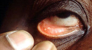 sarcoidosis eyes pictures