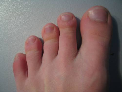 Big Toe on the Left Foot Is Numb