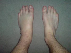 swollen left foot