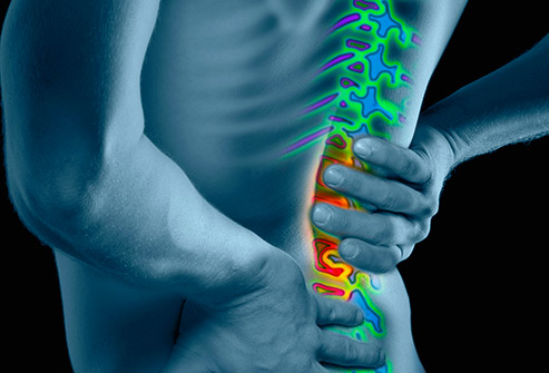 at home remedies for back spasms