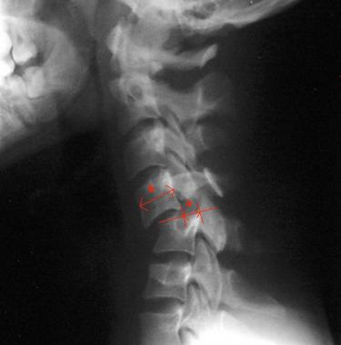 cervical spine fracture and breathing