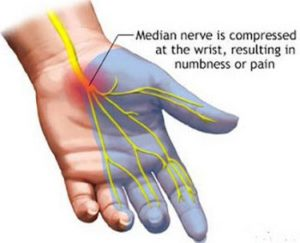 treatment for paresthesia of the fingers