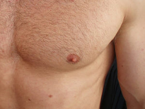 itchy nipples for guys