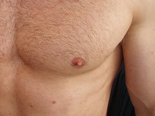 Bumps On Nipples Male 8