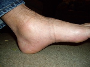ankle arthritis and running