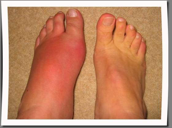 swelling of left foot
