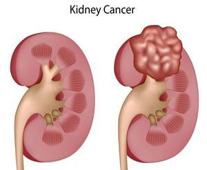 what is kidney cancer symptoms