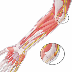 pinched nerve in elbow