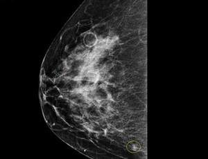 fibrocystic breasts (mammography image)