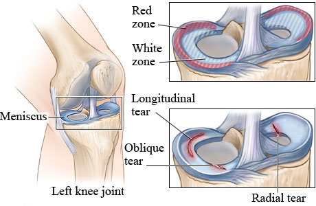 lateral meniscus tear surgery