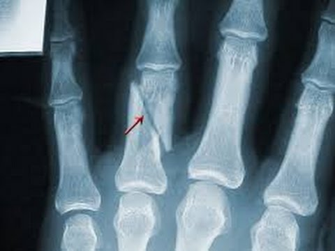 broken finger - x-ray