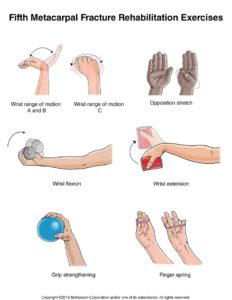 exercises for injured hand