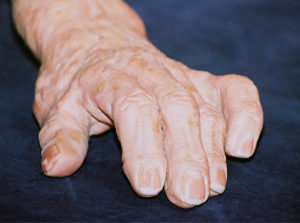 knuckle joint pain swelling