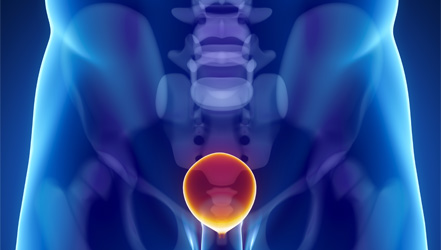 bladder pain close to the end of urination